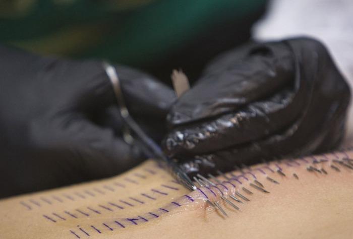 Piercing deve ser colocado com profissionais em ambiente estéril e limpo. Higienização da pele também é necessária. — Foto: Reuters
