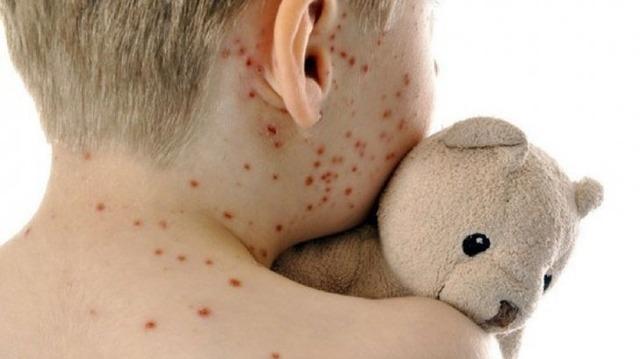 Ingreso del sarampión al país preocupa más que el coronavirus, dice el ministro de Salud, Julio Mazzoleni.Foto: infobae.com